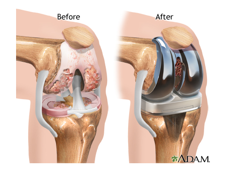 knee-replacement_1